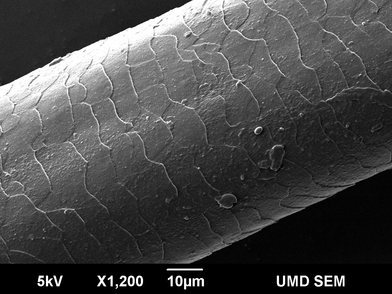 Damaged human hair under microscope - photo#8